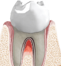 Periodontal Bone Regeneration in Mission Viejo