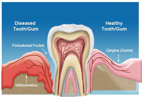 About Gum Disease