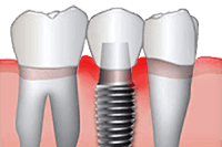 Cleanings for Dental Implants in Mission Viejo