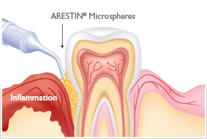 Gum Disease Treatment in Mission Viejo