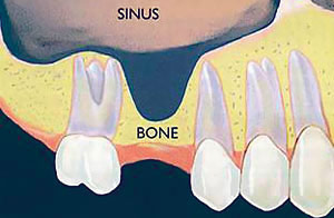 Periodontal Bone Regeneration in Mission Viejo - After a tooth is lost in the upper arch, the bone under the sinus floor diminishes.