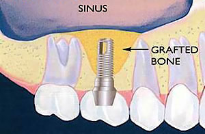 Periodontal Bone Regeneration in Mission Viejo - A bone graft is placed under the sinus floor membrane to regenerate the needed bone support for an implant.