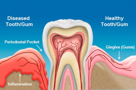 Gentle tooth extraction